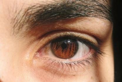 donación de cornea