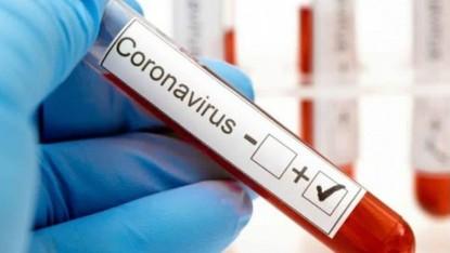 Coronavirus, POSITIVO