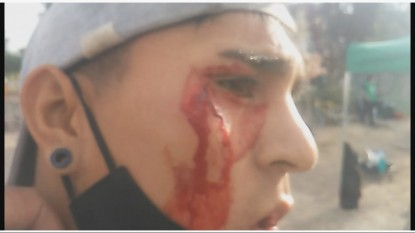 CINCO SALTOS, MUNICIPALES, disturbios, heridos